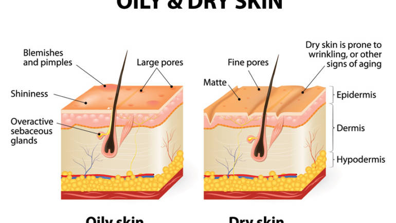 About Combination Skin and its Causes