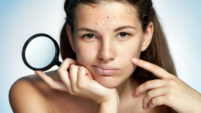 Common Acne Myths Debunked