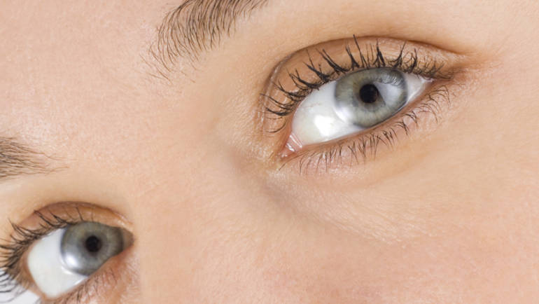 Eye Wrinkles: Definition, Causes and Prevention